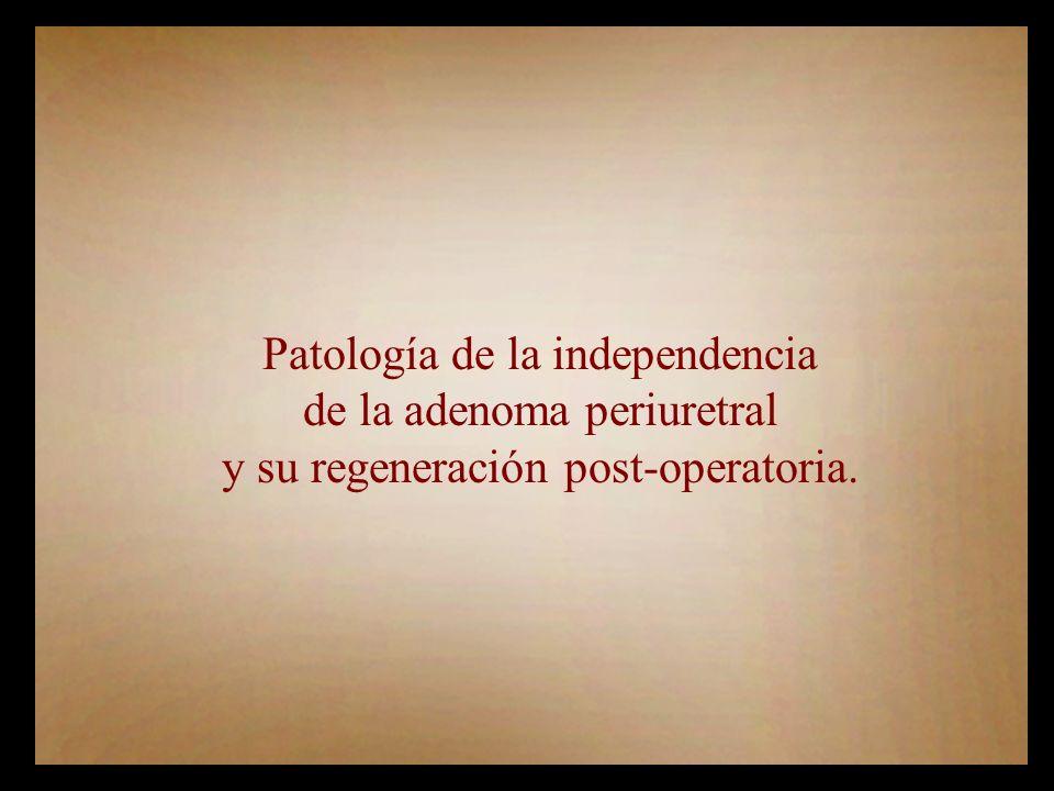 Patología de la independencia de la adenoma periuretral y su regeneración post-operatoria.