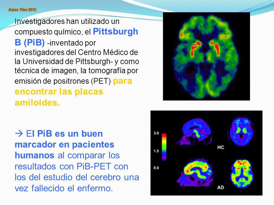 Examen neuropsicológico Para el diagnóstico de Alzheimer se fijan tres grados : EA posible: Los pacientes tienen déficit cognitivo de evolución lenta y progresiva sin disturbios de la conciencia y ausencia de trastornos vasculares, metabólicos o tóxicos del SNC.