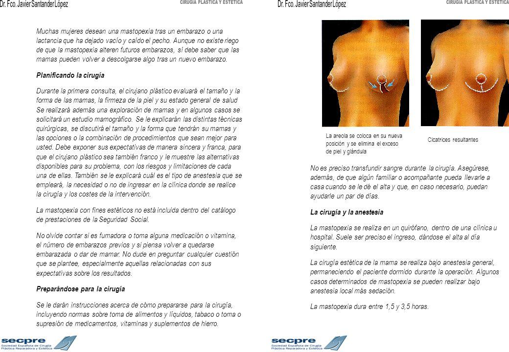 Las incisiones comprenden una area de la mama consistente en la parte de piel que se va a quitar y que colocará el pezón y la areola en su nueva posición más elevada.