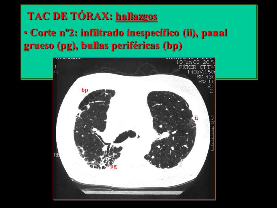 TAC DE TÓRAX: hallazgos TAC DE TÓRAX: hallazgos Corte nº2: infiltrado inespecífico (ii), panal grueso (pg), bullas periféricas (bp) Corte nº2: infiltr