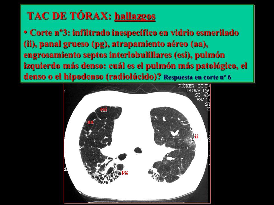 TAC DE TÓRAX: hallazgos TAC DE TÓRAX: hallazgos Corte nº3: infiltrado inespecífico en vidrio esmerilado (ii), panal grueso (pg), atrapamiento aéreo (a