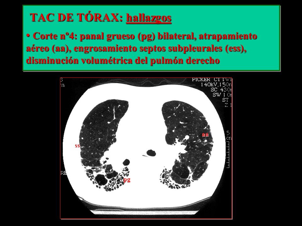TAC DE TÓRAX: hallazgos TAC DE TÓRAX: hallazgos Corte nº4: panal grueso (pg) bilateral, atrapamiento aéreo (aa), engrosamiento septos subpleurales (es