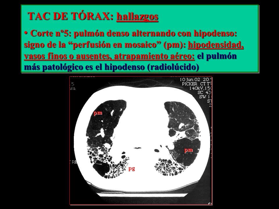 TAC DE TÓRAX: hallazgos TAC DE TÓRAX: hallazgos Corte nº5: pulmón denso alternando con hipodenso: signo de la perfusión en mosaico (pm): hipodensidad,