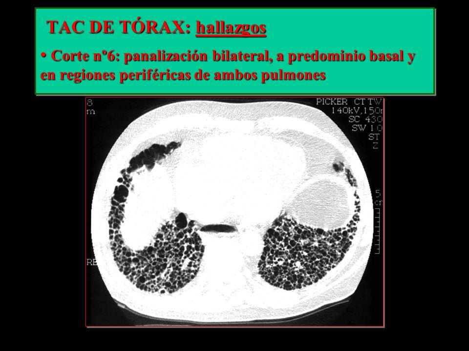 TAC DE TÓRAX: hallazgos TAC DE TÓRAX: hallazgos Corte nº6: panalización bilateral, a predominio basal y en regiones periféricas de ambos pulmones Cort