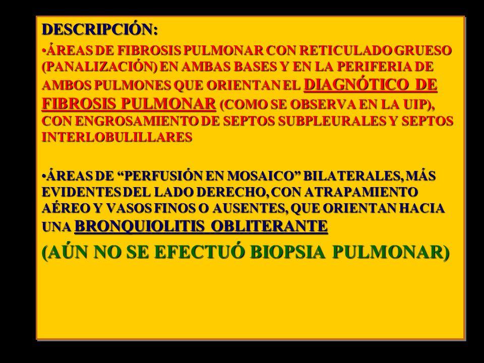 DESCRIPCIÓN: ÁREAS DE FIBROSIS PULMONAR CON RETICULADO GRUESO (PANALIZACIÓN) EN AMBAS BASES Y EN LA PERIFERIA DE AMBOS PULMONES QUE ORIENTAN EL DIAGNÓ
