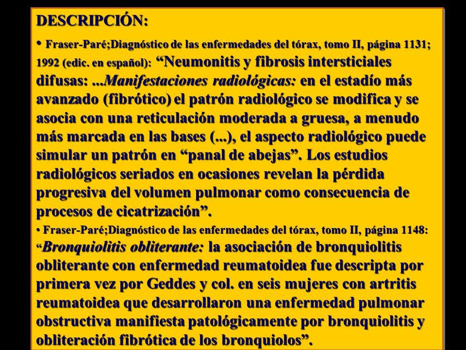 DESCRIPCIÓN: Fraser-Paré;Diagnóstico de las enfermedades del tórax, tomo II, página 1131; 1992 (edic. en español): Neumonitis y fibrosis intersticiale