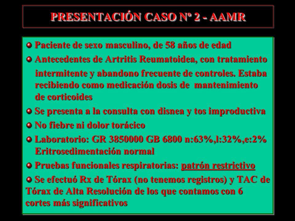 PRESENTACIÓN CASO Nº 2 - AAMR Paciente de sexo masculino, de 58 años de edad Paciente de sexo masculino, de 58 años de edad Antecedentes de Artritis R
