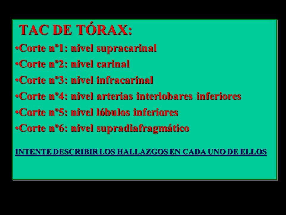 TAC DE TÓRAX: TAC DE TÓRAX: Corte nº1: nivel supracarinalCorte nº1: nivel supracarinal Corte nº2: nivel carinalCorte nº2: nivel carinal Corte nº3: niv