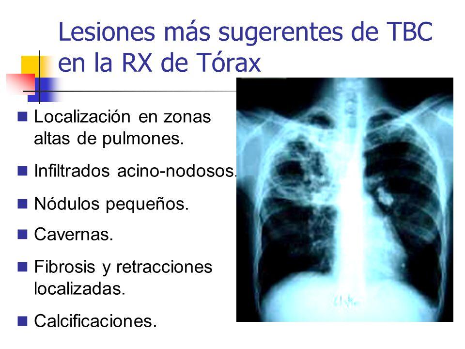 Lesiones más sugerentes de TBC en la RX de Tórax Localización en zonas altas de pulmones. Infiltrados acino-nodosos. Nódulos pequeños. Cavernas. Fibro