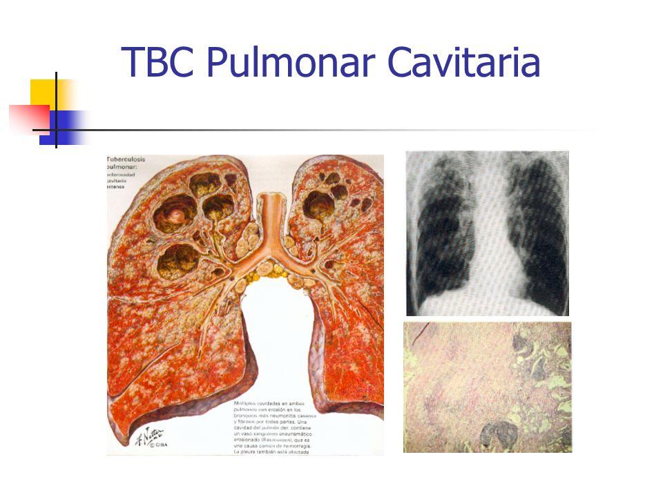 TBC Pulmonar Cavitaria