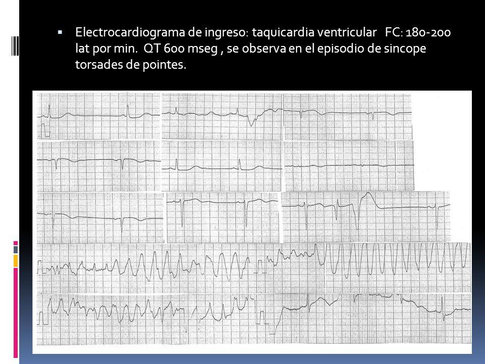 Electrocardiograma de ingreso: taquicardia ventricular FC: 180-200 lat por min. QT 600 mseg, se observa en el episodio de sincope torsades de pointes.