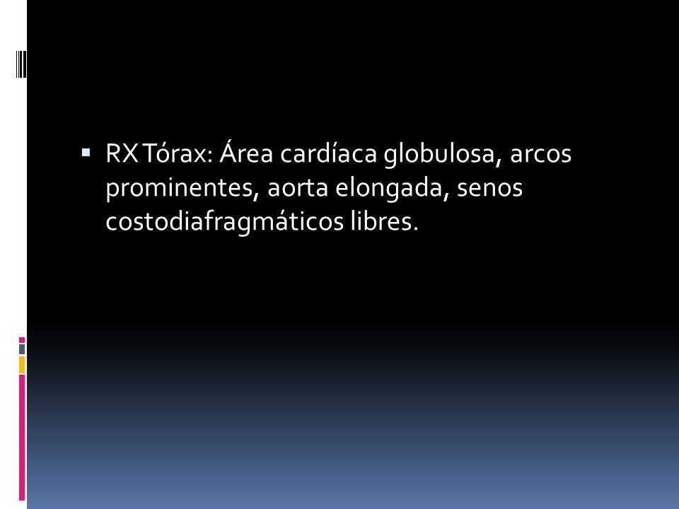 RX Tórax: Área cardíaca globulosa, arcos prominentes, aorta elongada, senos costodiafragmáticos libres.