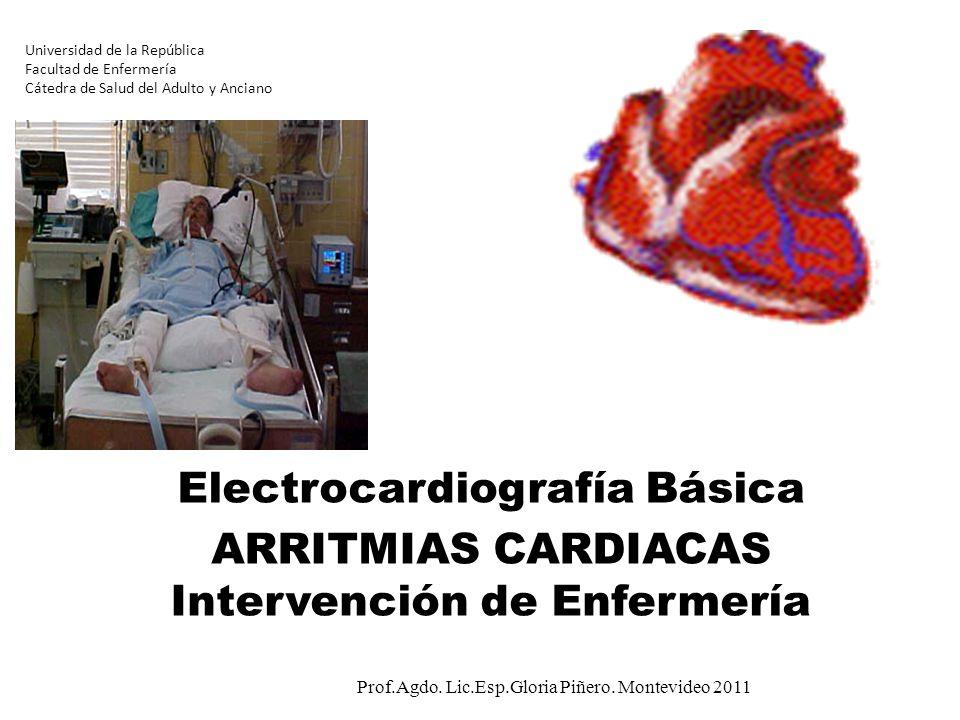 Universidad de la República Facultad de Enfermería Cátedra de Salud del Adulto y Anciano Electrocardiografía Básica ARRITMIAS CARDIACAS Intervención d