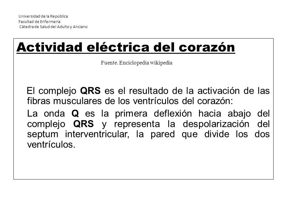 Universidad de la República Facultad de Enfermería Cátedra de Salud del Adulto y Anciano Actividad eléctrica del corazón El complejo QRS es el resulta