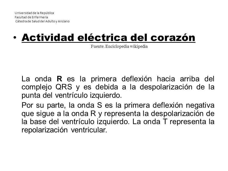 Universidad de la República Facultad de Enfermería Cátedra de Salud del Adulto y Anciano Actividad eléctrica del corazón La onda R es la primera defle