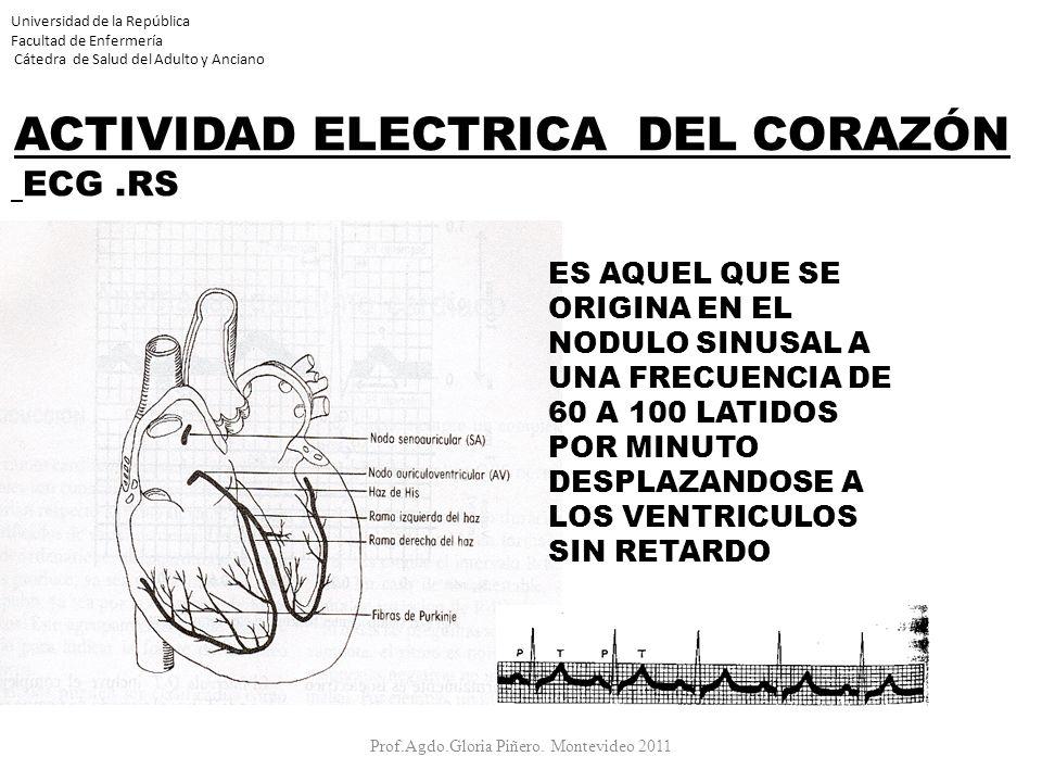 Universidad de la República Facultad de Enfermería Cátedra de Salud del Adulto y Anciano ACTIVIDAD ELECTRICA DEL CORAZÓN ECG.RS Prof.Agdo.Gloria Piñer