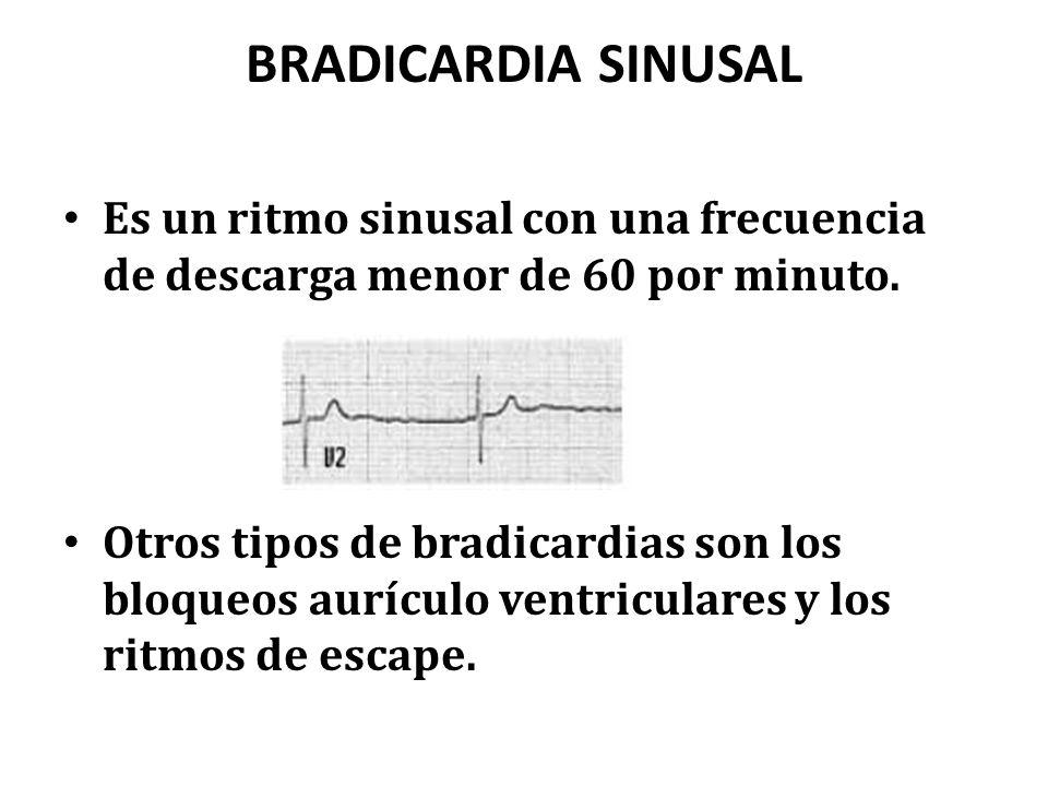 BRADICARDIA SINUSAL Es un ritmo sinusal con una frecuencia de descarga menor de 60 por minuto. Otros tipos de bradicardias son los bloqueos aurículo v