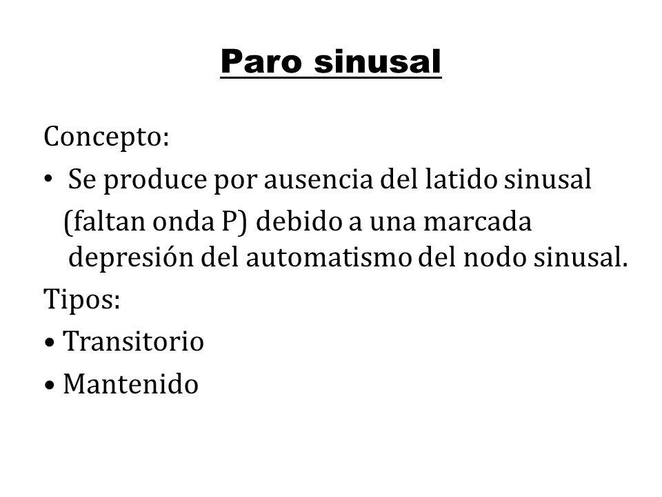 Paro sinusal Concepto: Se produce por ausencia del latido sinusal (faltan onda P) debido a una marcada depresión del automatismo del nodo sinusal. Tip