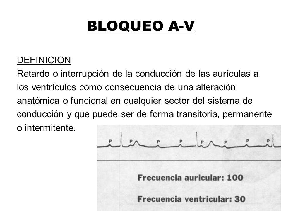 BLOQUEO A-V DEFINICION Retardo o interrupción de la conducción de las aurículas a los ventrículos como consecuencia de una alteración anatómica o func