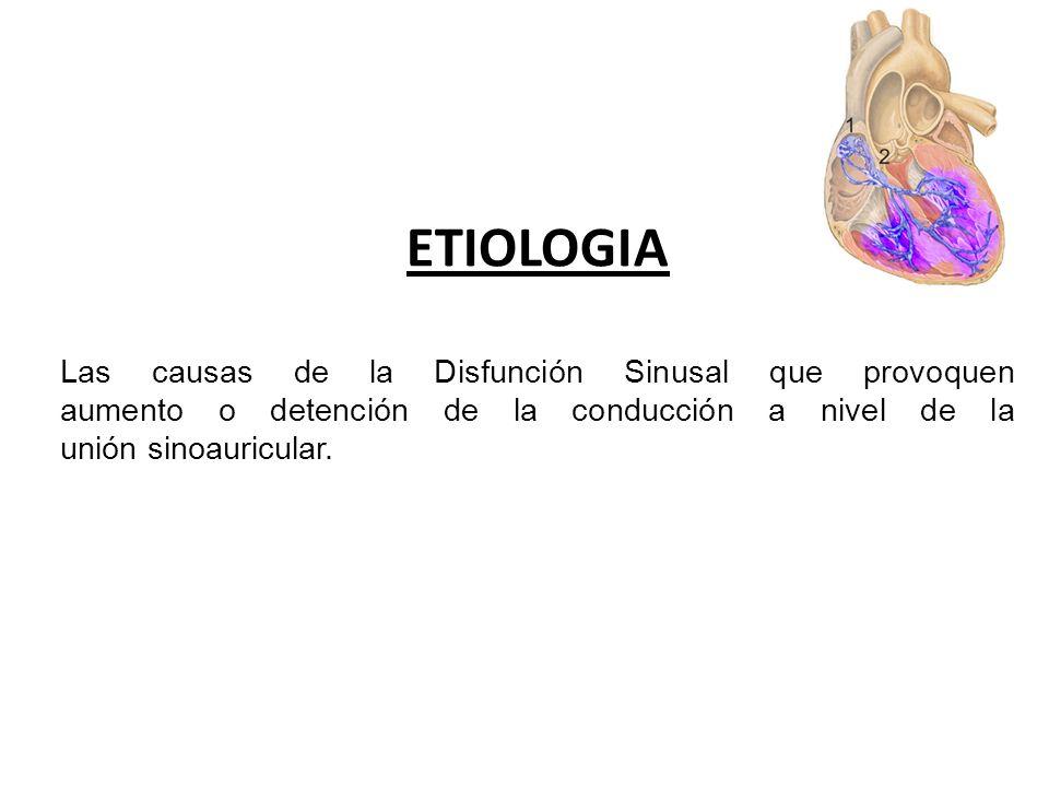 ETIOLOGIA Las causas de la Disfunción Sinusal que provoquen aumento o detención de la conducción a nivel de la unión sinoauricular.