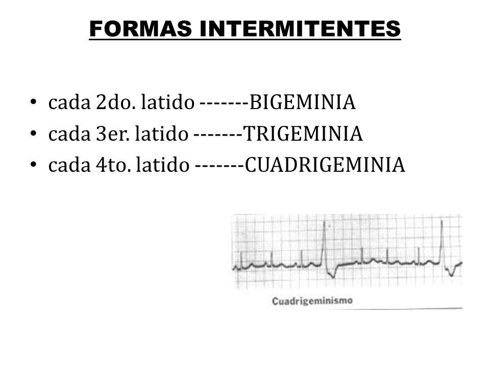 FORMAS INTERMITENTES cada 2do. latido -------BIGEMINIA cada 3er. latido -------TRIGEMINIA cada 4to. latido -------CUADRIGEMINIA