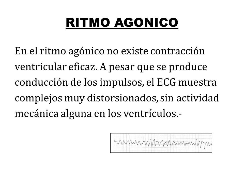 RITMO AGONICO En el ritmo agónico no existe contracción ventricular eficaz. A pesar que se produce conducción de los impulsos, el ECG muestra complejo