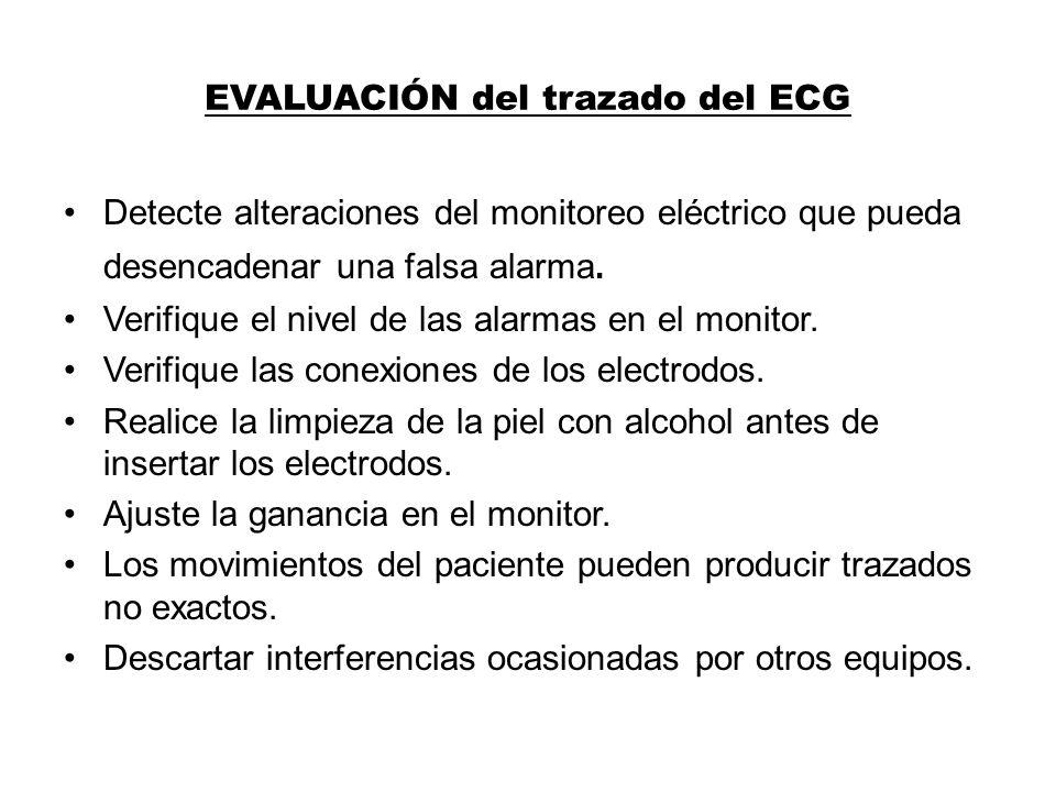 EVALUACIÓN del trazado del ECG Detecte alteraciones del monitoreo eléctrico que pueda desencadenar una falsa alarma. Verifique el nivel de las alarmas