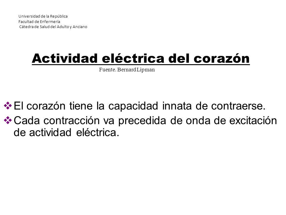EVALUACIÓN del trazado del ECG Detecte alteraciones del monitoreo eléctrico que pueda desencadenar una falsa alarma.