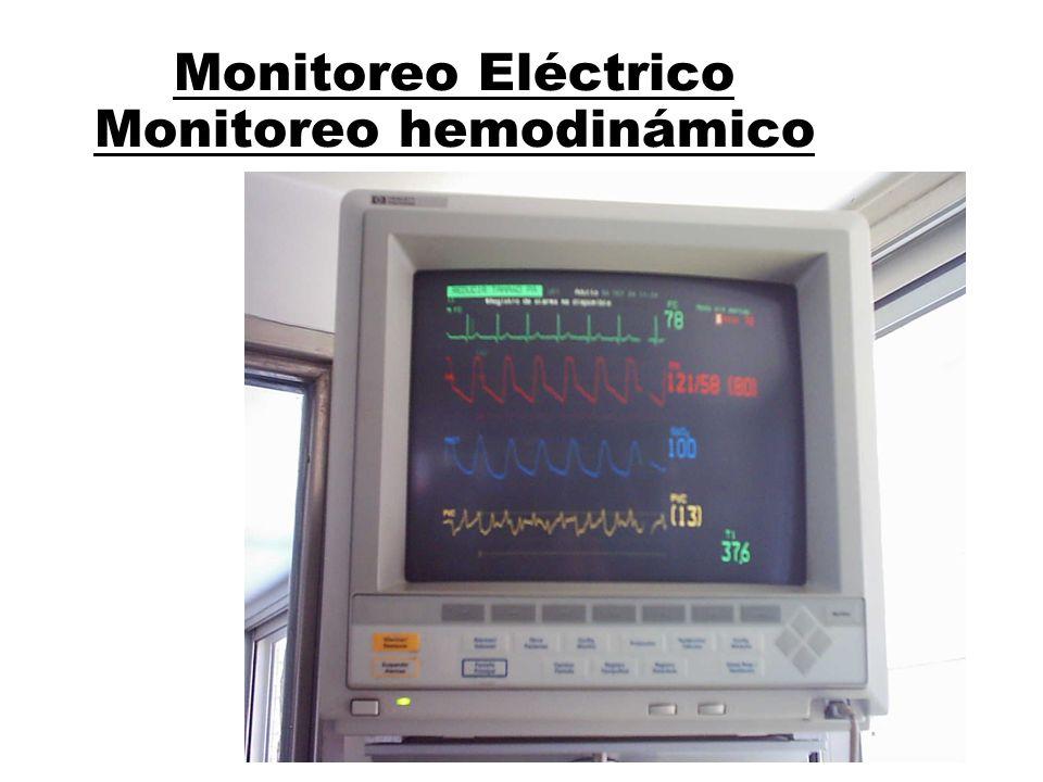 Monitoreo Eléctrico Monitoreo hemodinámico