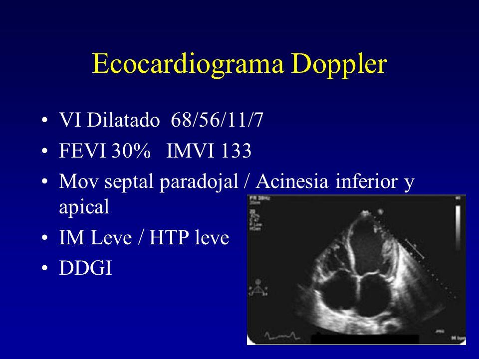 Ecocardiograma Doppler VI Dilatado 68/56/11/7 FEVI 30% IMVI 133 Mov septal paradojal / Acinesia inferior y apical IM Leve / HTP leve DDGI