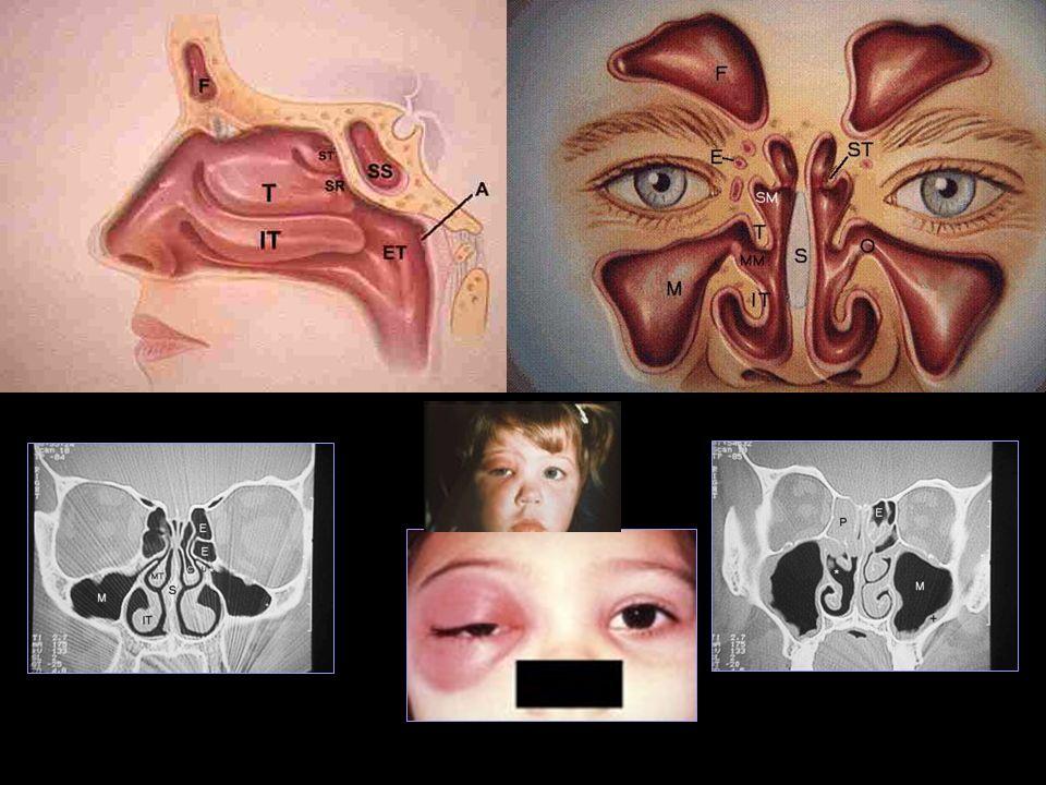 Sinusitis Cuadro cl í nico Comienza con un CVAS s í ntomas persisten en el tiempo. S ospechar ante la presencia de: Rinorrea purulenta persistente. Fi