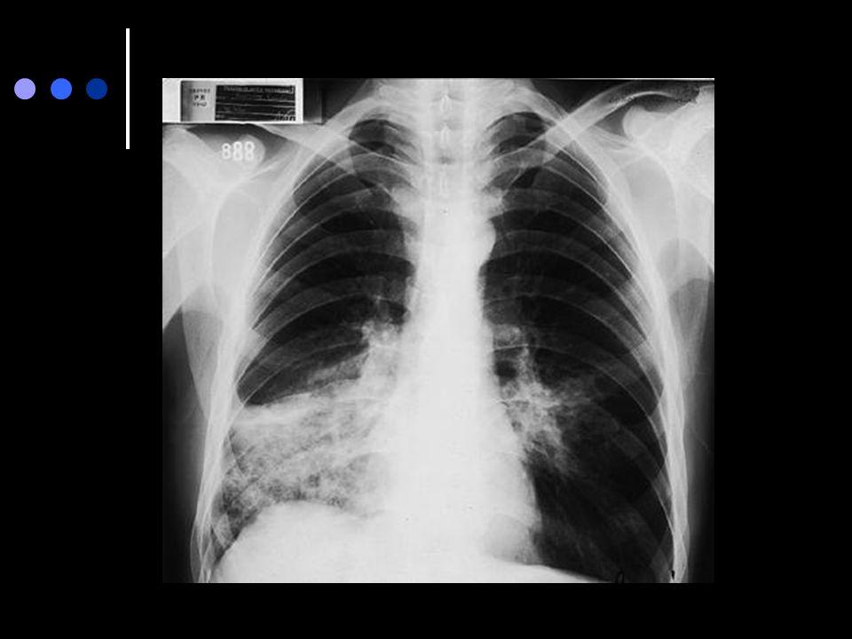 Paciente de sexo masculino de 53 años de edad. fumador de cigarrillos importante. Historia de tos productiva de 5 años de evolución y disnea en los úl