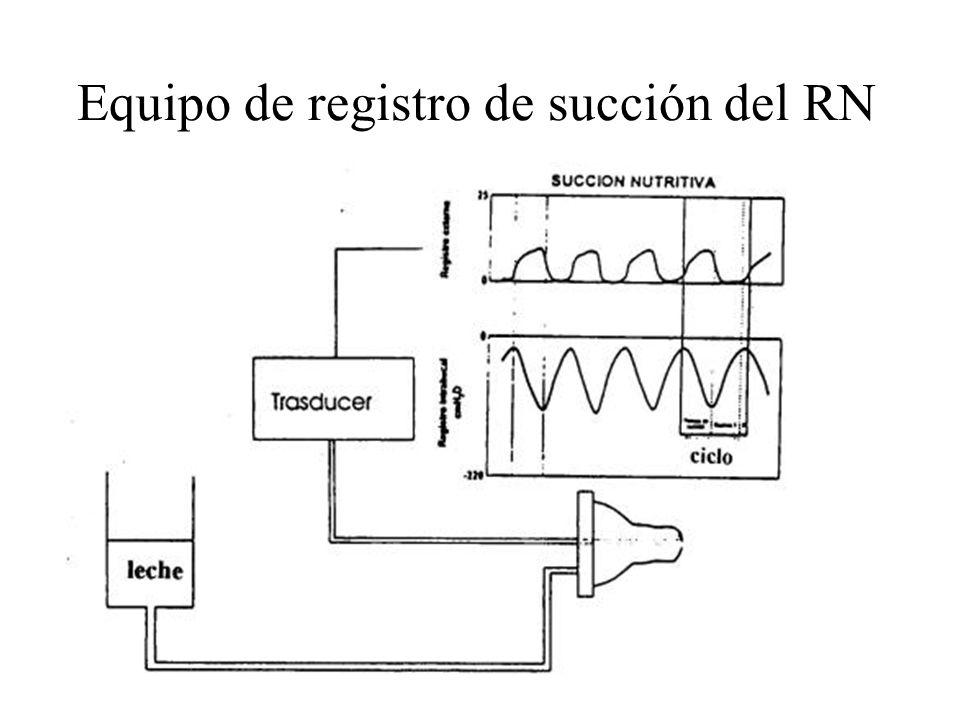 Equipo de registro de succión del RN