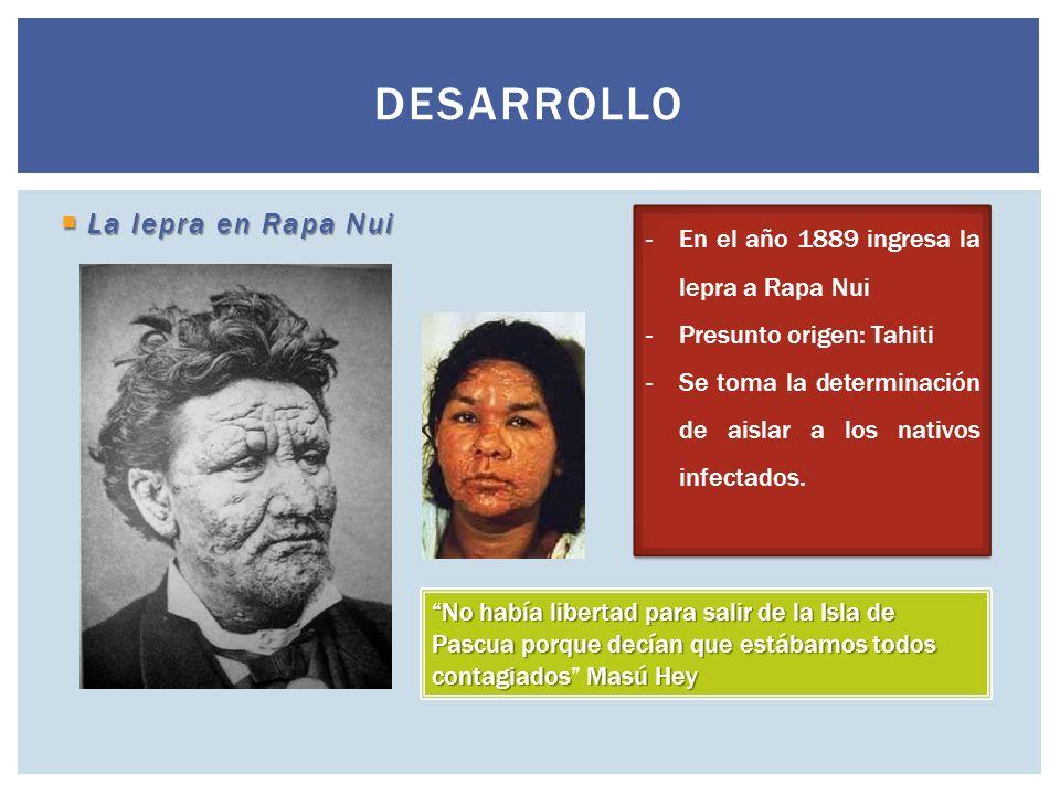 La lepra en Rapa Nui La lepra en Rapa Nui DESARROLLO -En el año 1889 ingresa la lepra a Rapa Nui -Presunto origen: Tahiti -Se toma la determinación de