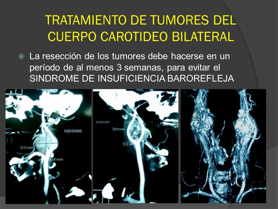 TRATAMIENTO DE TUMORES DEL CUERPO CAROTIDEO BILATERAL La resección de los tumores debe hacerse en un período de al menos 3 semanas, para evitar el SIN
