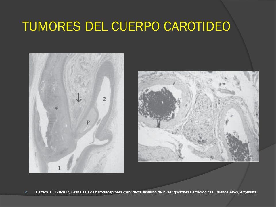 DESCRIPCIONVALORES Pacientes con PGs45 pts - 46 tumores in 13 años (1998 -2010) GéneroFemenino 82%, Masculino 18% Edad62 años (30 -75) Localización54% lado izquierdo, 43% lado derecho, 2% bilateral MalignidadSolamente 1 caso Clasificación de ShamblinType I: 54%, Type II: 45%, Type III: 1% Intervenciones para Shamblin type III / Complicaciones intraoperatorias 12% Ligadura de carótida externa, angioplastia longitudinal de carótida interna y reparación primaria de bifurcación carotídea.