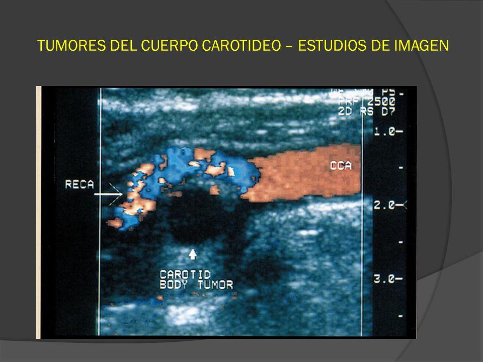 TUMORES DEL CUERPO CAROTIDEO – ESTUDIOS DE IMAGEN