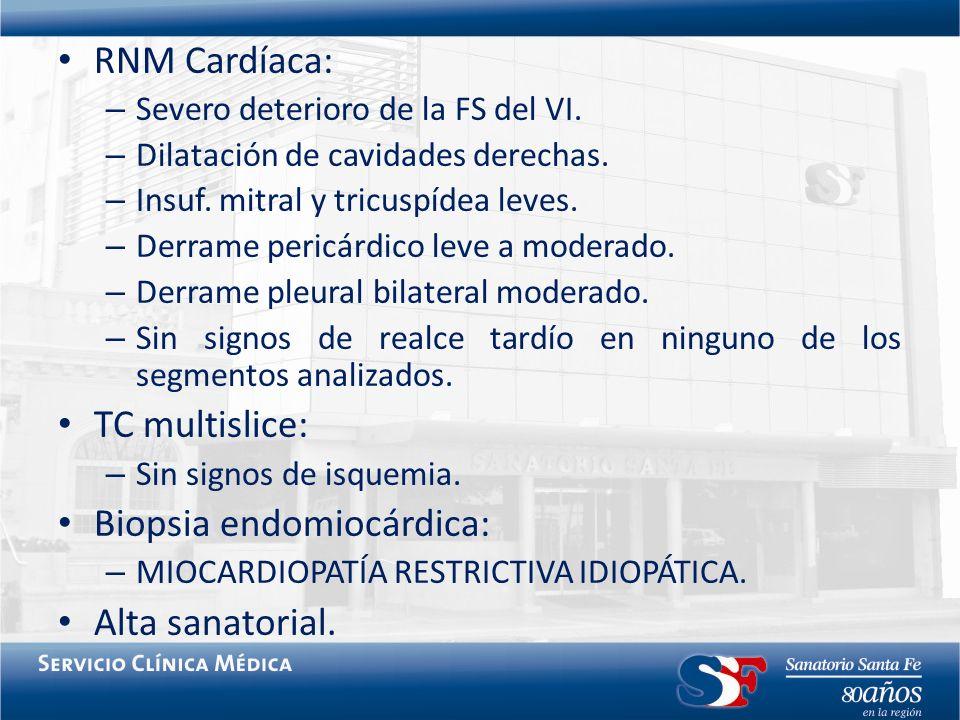 RNM Cardíaca: – Severo deterioro de la FS del VI. – Dilatación de cavidades derechas. – Insuf. mitral y tricuspídea leves. – Derrame pericárdico leve