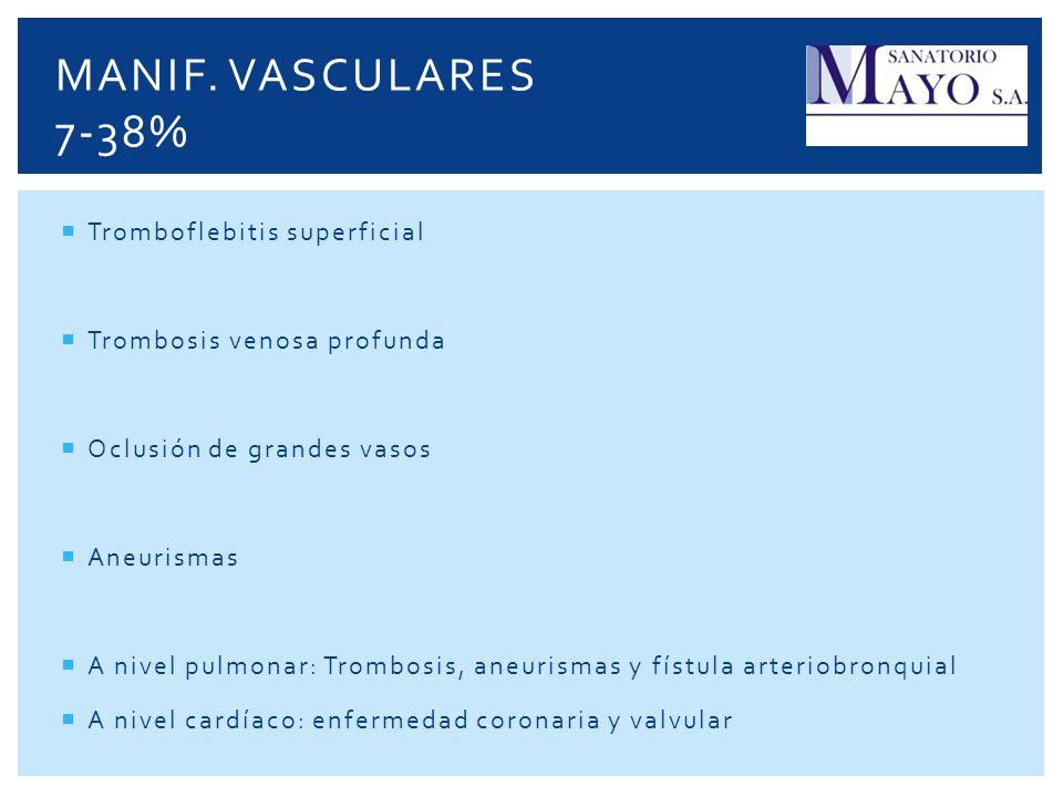 Tromboflebitis superficial Trombosis venosa profunda Oclusión de grandes vasos Aneurismas A nivel pulmonar: Trombosis, aneurismas y fístula arteriobro