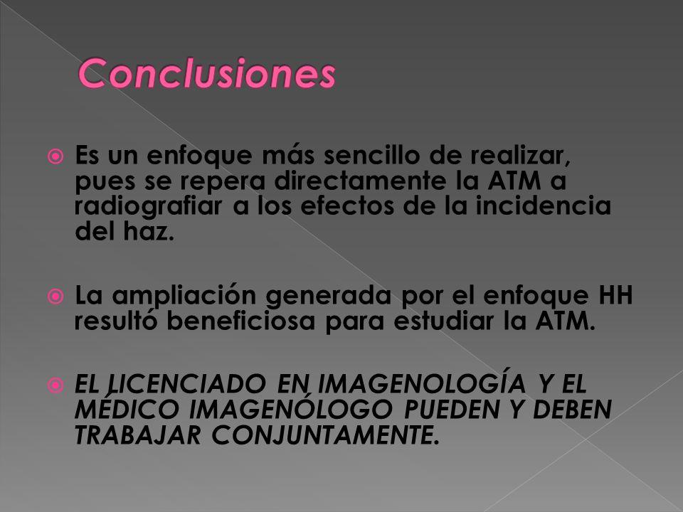 Es un enfoque más sencillo de realizar, pues se repera directamente la ATM a radiografiar a los efectos de la incidencia del haz. La ampliación genera