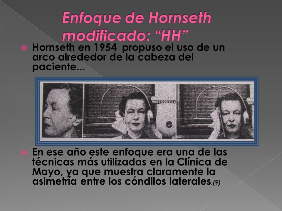 Hornseth en 1954 propuso el uso de un arco alrededor de la cabeza del paciente... En ese año este enfoque era una de las técnicas más utilizadas en la