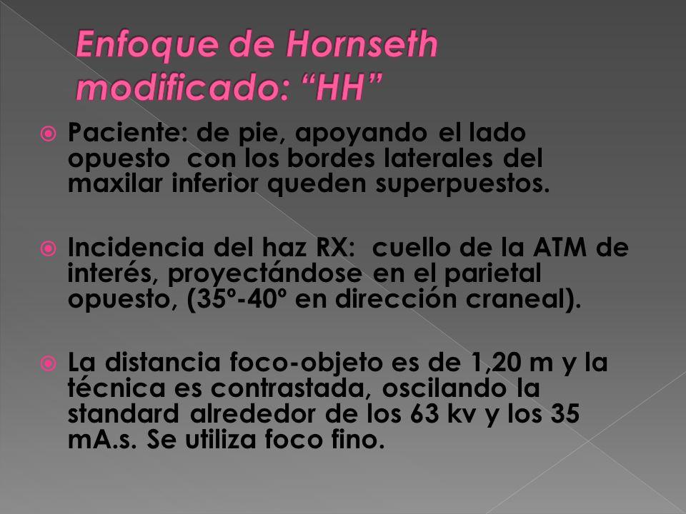 Es un enfoque más sencillo de realizar, pues se repera directamente la ATM a radiografiar a los efectos de la incidencia del haz.