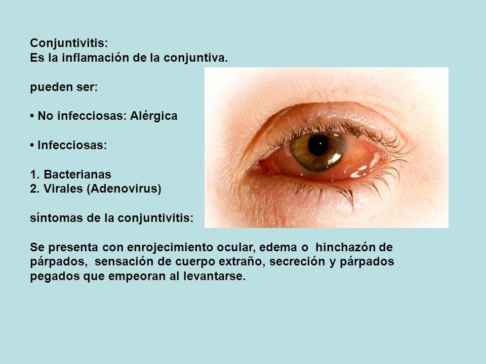 Conjuntivitis: Es la inflamación de la conjuntiva. pueden ser: No infecciosas: Alérgica Infecciosas: 1. Bacterianas 2. Virales (Adenovirus) síntomas d