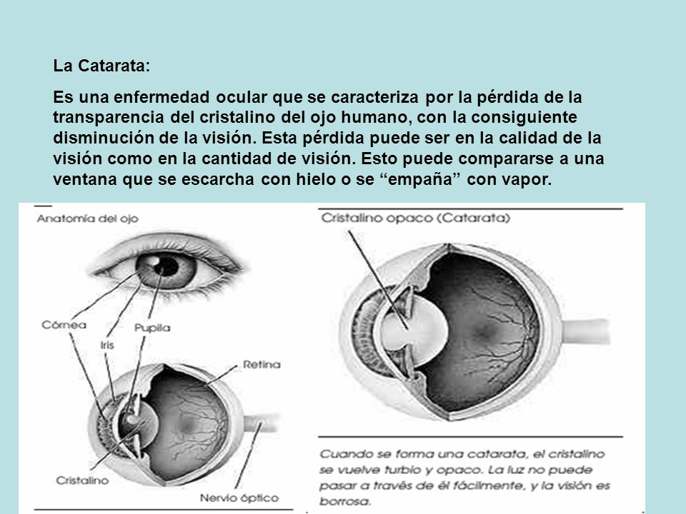 La Catarata: Es una enfermedad ocular que se caracteriza por la pérdida de la transparencia del cristalino del ojo humano, con la consiguiente disminución de la visión.
