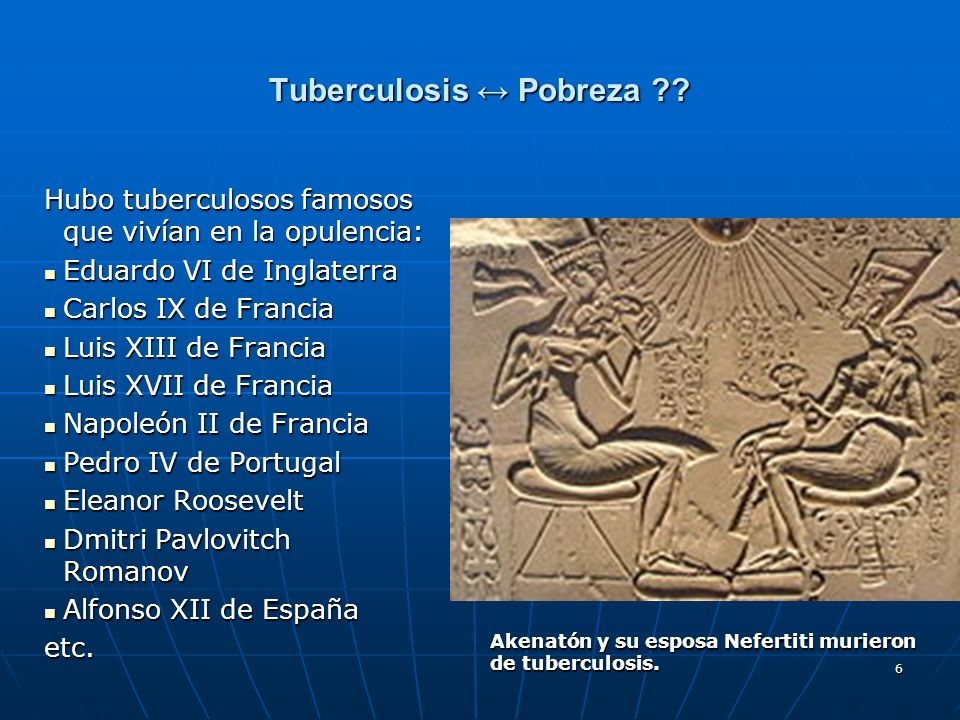 6 Tuberculosis Pobreza ?? Hubo tuberculosos famosos que vivían en la opulencia: Eduardo VI de Inglaterra Eduardo VI de Inglaterra Carlos IX de Francia