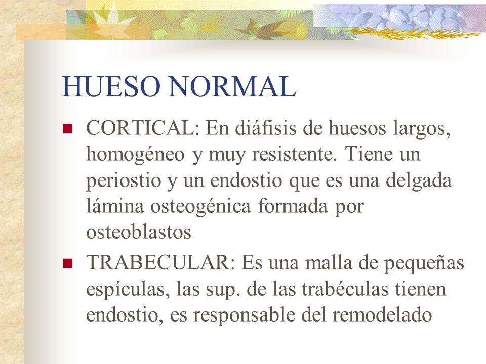 HUESO NORMAL CORTICAL: En diáfisis de huesos largos, homogéneo y muy resistente.