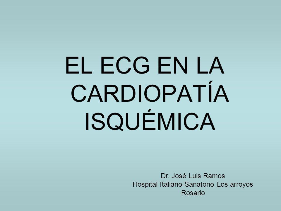 EL ECG EN LA CARDIOPATÍA ISQUÉMICA Dr. José Luis Ramos Hospital Italiano-Sanatorio Los arroyos Rosario