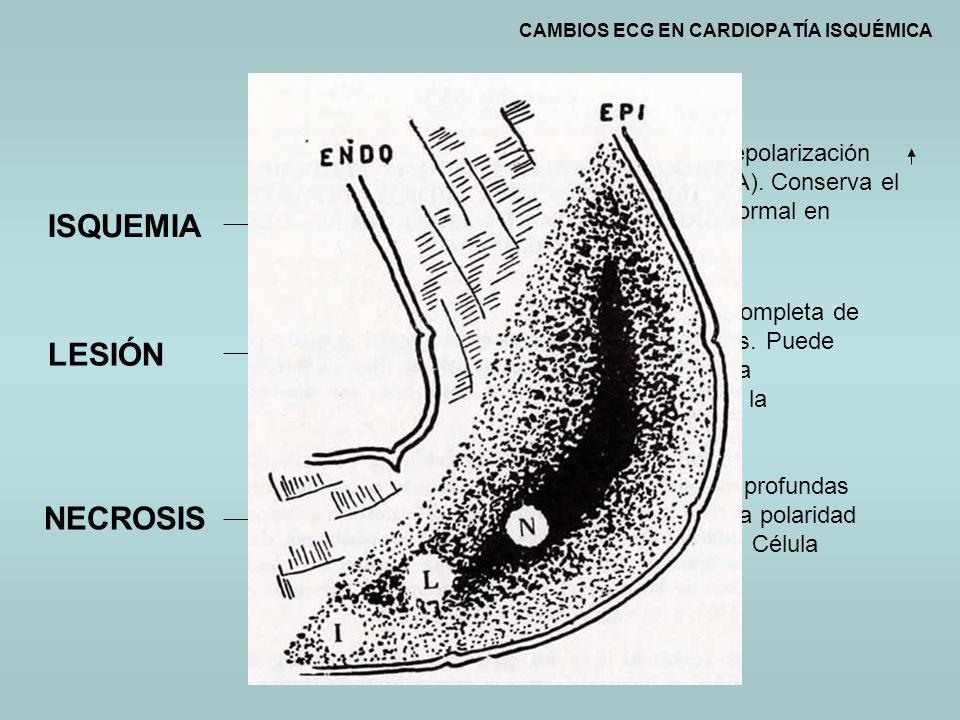 CAMBIOS ECG EN CARDIOPATÍA ISQUÉMICA ISQUEMIA LESIÓN NECROSIS ONDA T ALTERADA SEGMENTO ST ALTERADO QRS ALTERADO Retardo en la repolarización (aumento