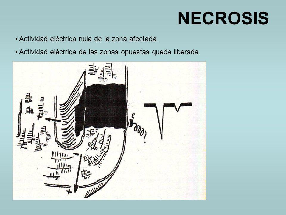 NECROSIS Actividad eléctrica nula de la zona afectada. Actividad eléctrica de las zonas opuestas queda liberada.