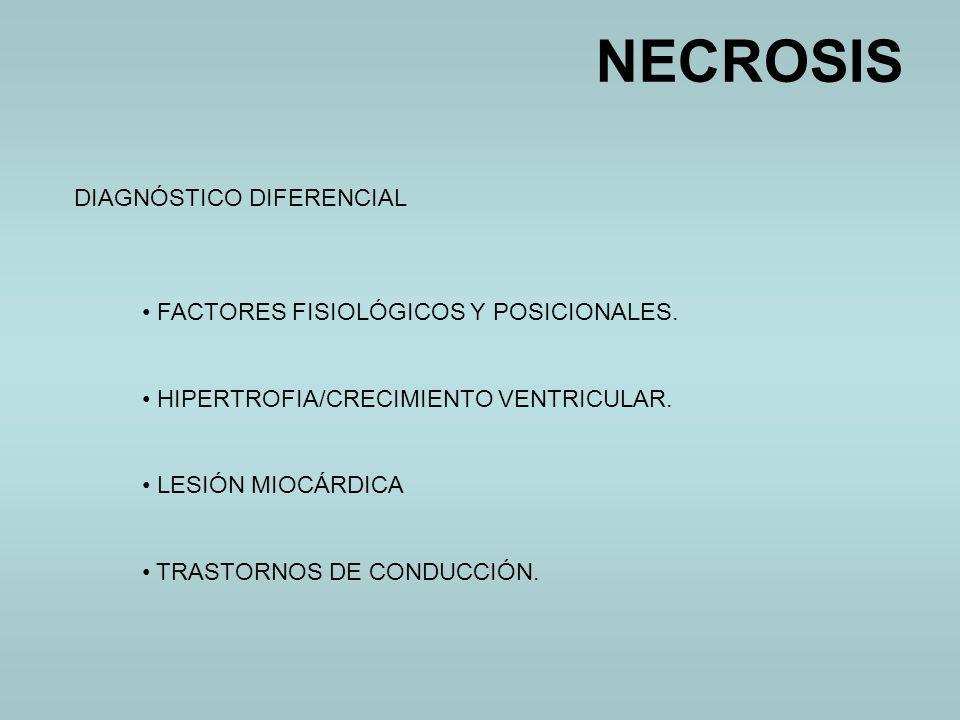 DIAGNÓSTICO DIFERENCIAL FACTORES FISIOLÓGICOS Y POSICIONALES. HIPERTROFIA/CRECIMIENTO VENTRICULAR. LESIÓN MIOCÁRDICA TRASTORNOS DE CONDUCCIÓN.